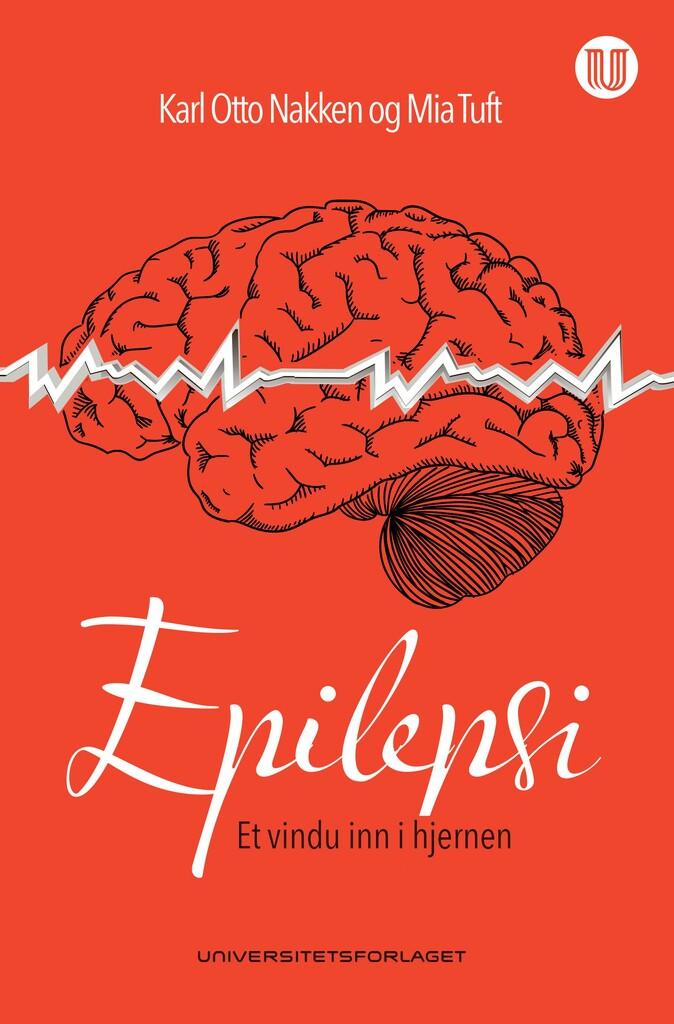 Epilepsi : et vindu inn i hjernen